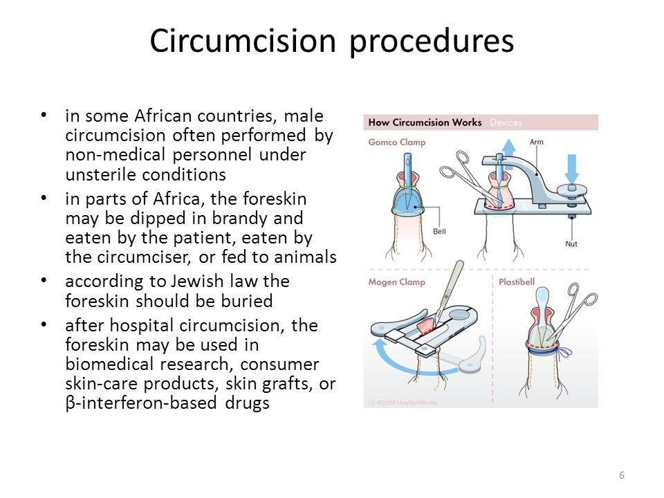 Circumcision procedures in some African countries, male circumcision often performed by non-medical personnel under unsterile conditions in parts of Africa, the foreskin may be dipped in brandy and eaten by the patient, eaten by the circumciser, or fed to animals according to Jewish law the foreskin should be buried after hospital circumcision, the foreskin may be used in biomedical research, consumer skin-care products, skin grafts, or β-interferon-based drugs 6