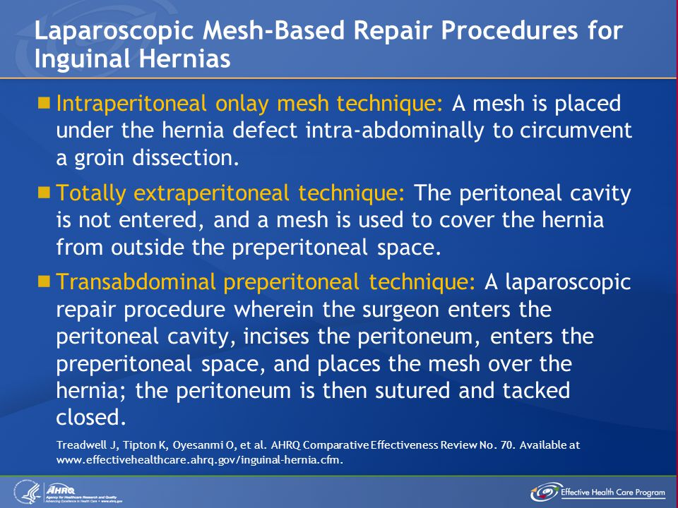  Intraperitoneal onlay mesh technique: A mesh is placed under the hernia defect intra-abdominally to circumvent a groin dissection.  Totally extrape