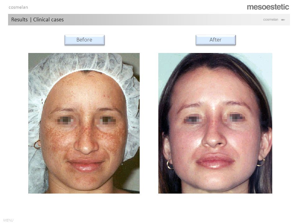 antiaging range MENU Before After Results | Clinical cases cosmelan