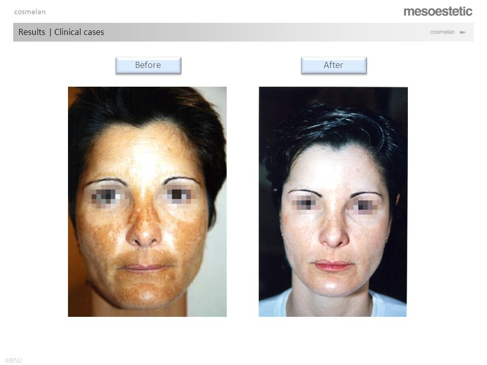 antiaging range MENU cosmelan Results | Clinical cases Before After