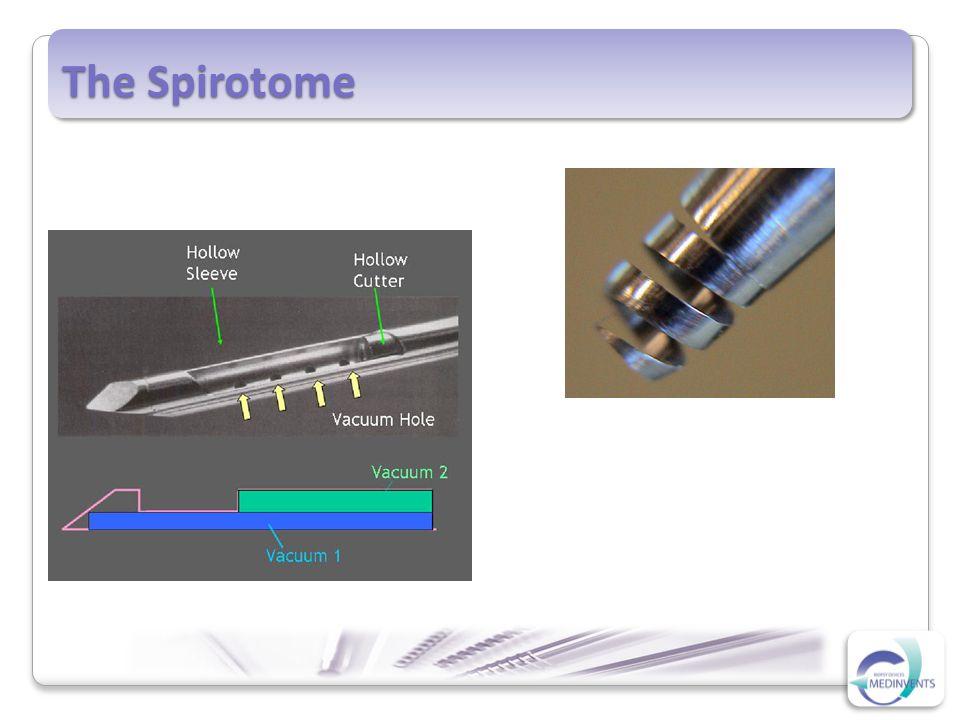 The Spirotome