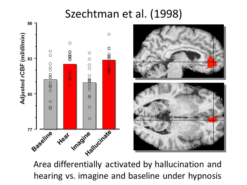 Szechtman et al. (1998) Area differentially activated by hallucination and hearing vs. imagine and baseline under hypnosis Baseline Hear Imagine Hallu