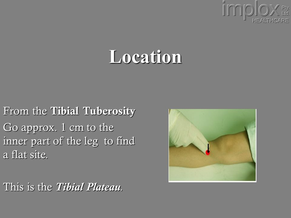 Location From the Tibial Tuberosity Go approx.
