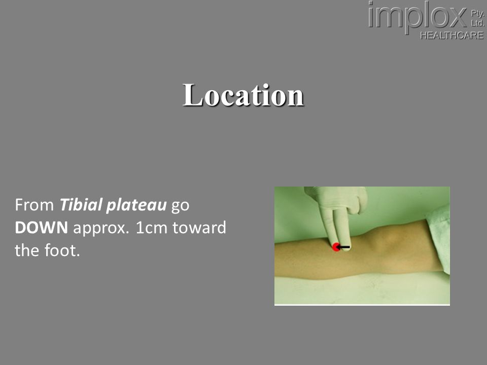 Location From Tibial plateau go DOWN approx. 1cm toward the foot.