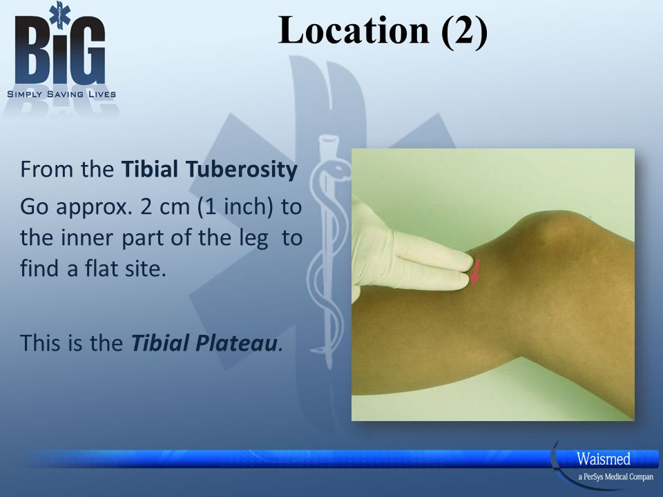 Location (2) From the Tibial Tuberosity Go approx.