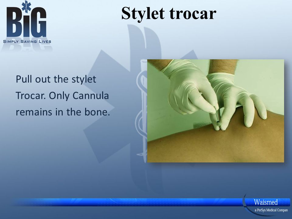 Stylet trocar Pull out the stylet Trocar. Only Cannula remains in the bone.