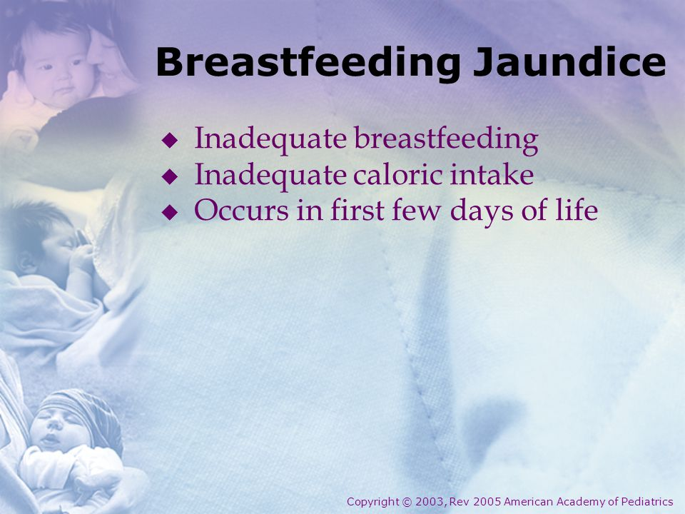 Breastfeeding Jaundice  Inadequate breastfeeding  Inadequate caloric intake  Occurs in first few days of life Copyright © 2003, Rev 2005 American A