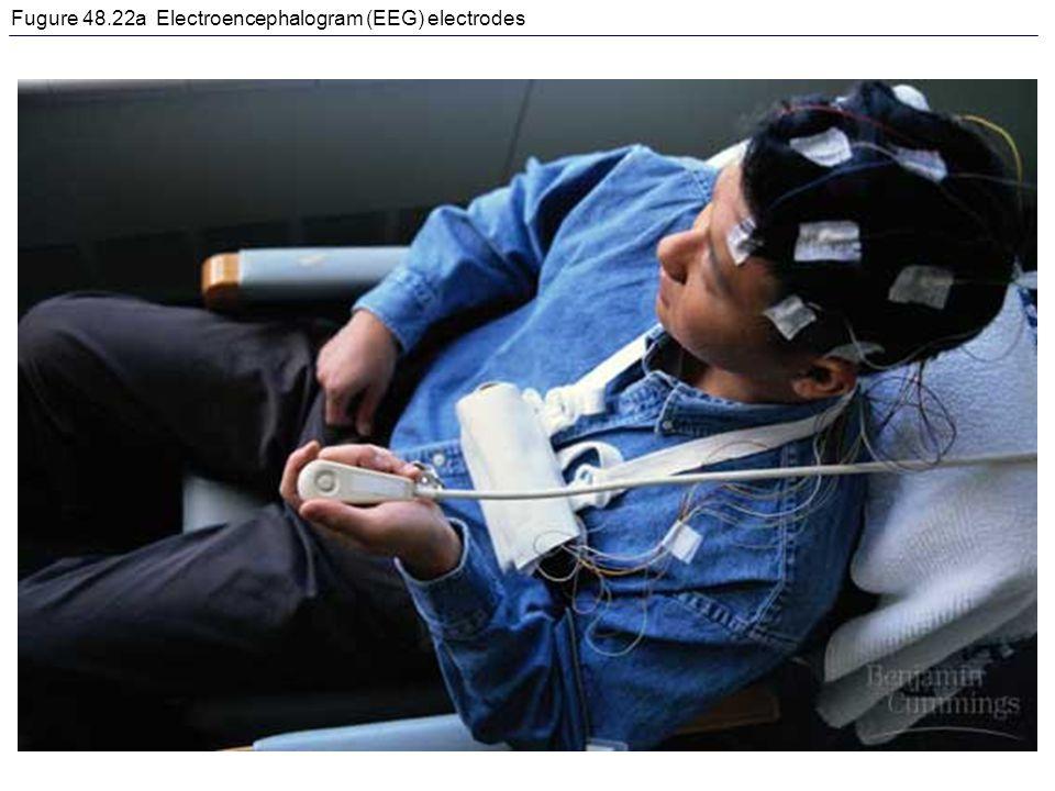 Fugure 48.22a Electroencephalogram (EEG) electrodes