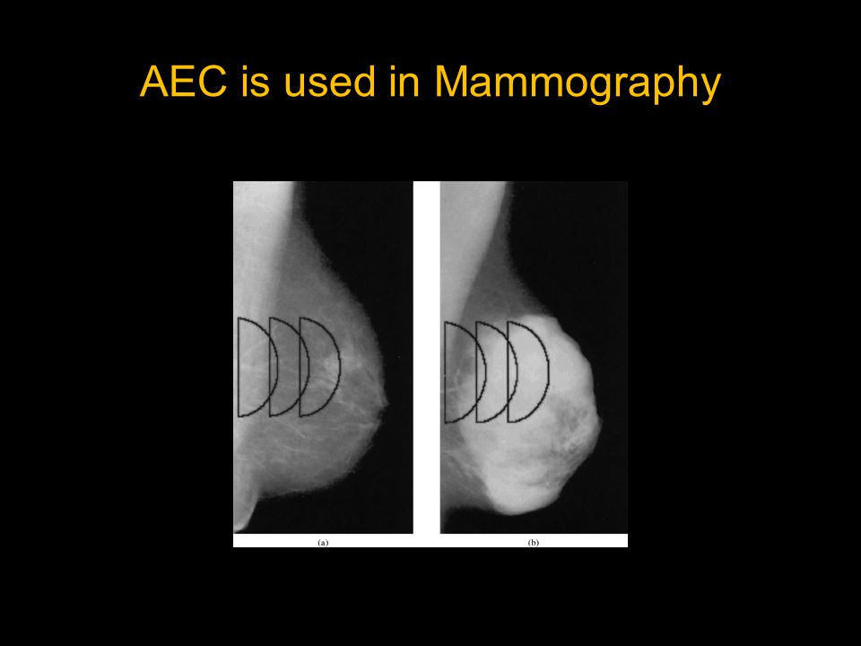 AEC is used in Mammography