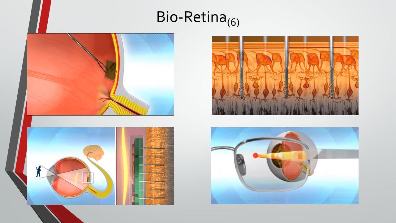 Bio-Retina (6)