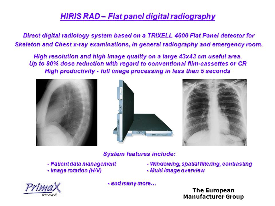 The European Manufacturer Group Direct digital radiology system based on a TRIXELL 4600 Flat Panel detector for Skeleton and Chest x-ray examinations, in general radiography and emergency room.