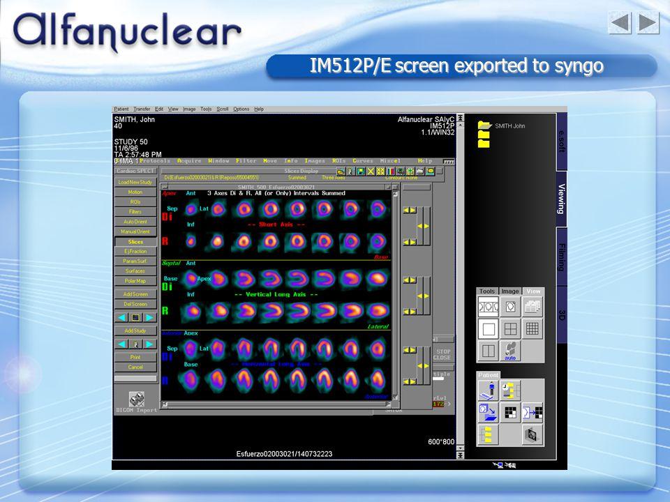 IM512P/E screen exported to syngo