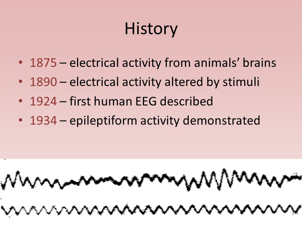 History 1875 – electrical activity from animals' brains 1890 – electrical activity altered by stimuli 1924 – first human EEG described 1934 – epileptiform activity demonstrated