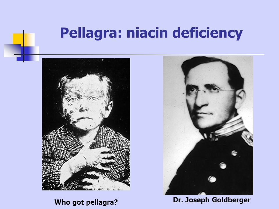 Pellagra: niacin deficiency Who got pellagra? Dr. Joseph Goldberger