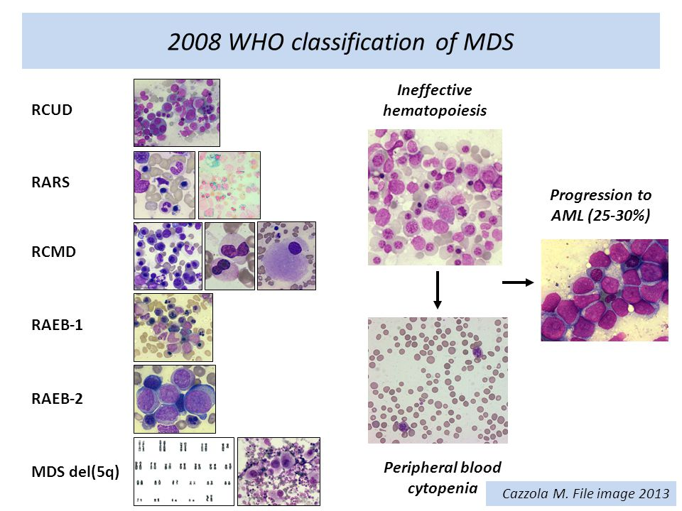2008 WHO classification of MDS Progression to AML (25-30%) RCUD RARS RCMD RAEB-1 RAEB-2 MDS del(5q) Ineffective hematopoiesis Peripheral blood cytopenia Cazzola M.