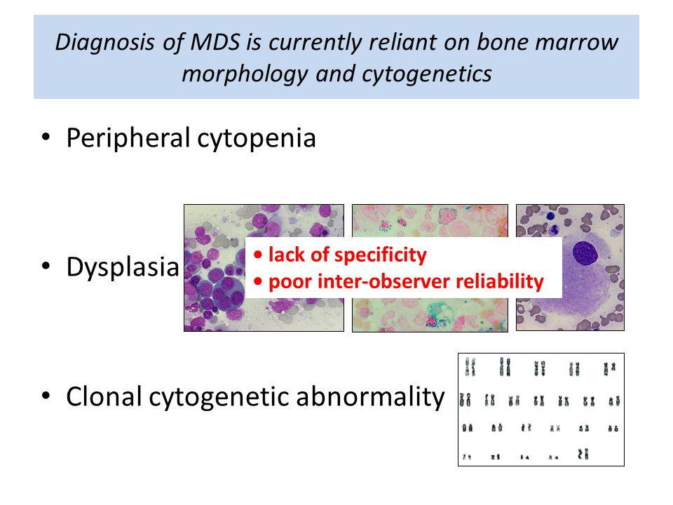 Diagnosis of MDS is currently reliant on bone marrow morphology and cytogenetics Peripheral cytopenia Dysplasia Clonal cytogenetic abnormality lack of specificity poor inter-observer reliability