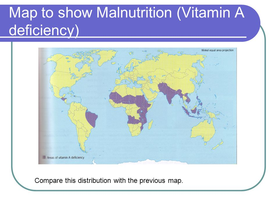 Map to show Malnutrition (Vitamin A deficiency) Compare this distribution with the previous map.