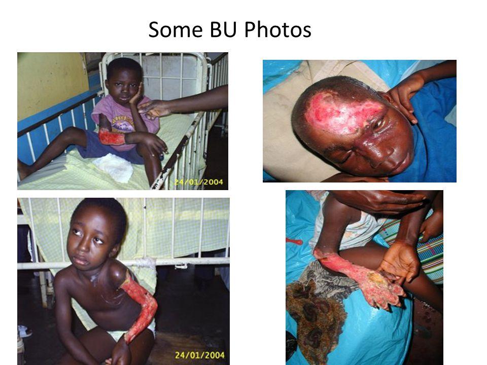 Some BU Photos