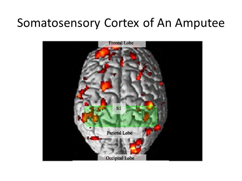 Somatosensory Cortex of An Amputee