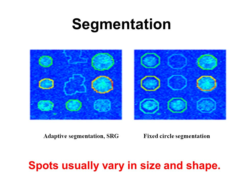 Segmentation Adaptive segmentation, SRGFixed circle segmentation Spots usually vary in size and shape.