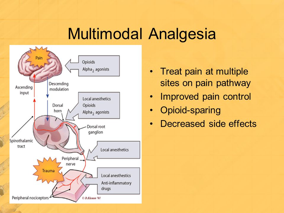 Multimodal Analgesia Treat pain at multiple sites on pain pathway Improved pain control Opioid-sparing Decreased side effects