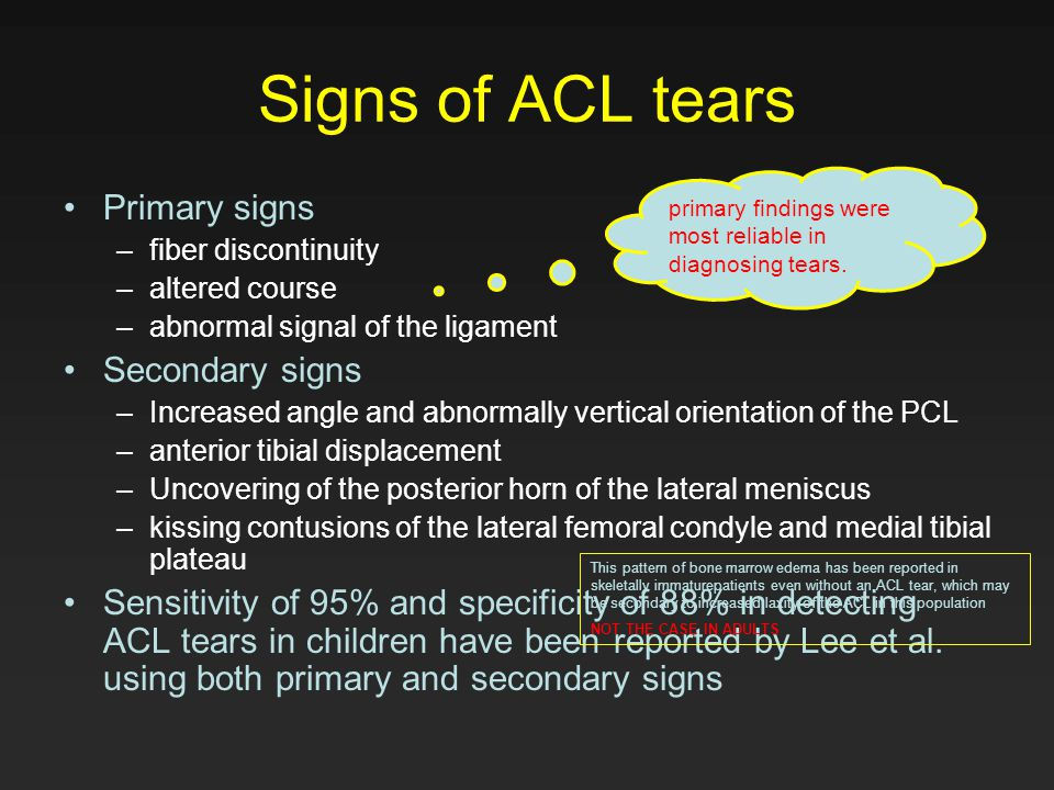 Signs of ACL tears Primary signs –fiber discontinuity –altered course –abnormal signal of the ligament Secondary signs –Increased angle and abnormally