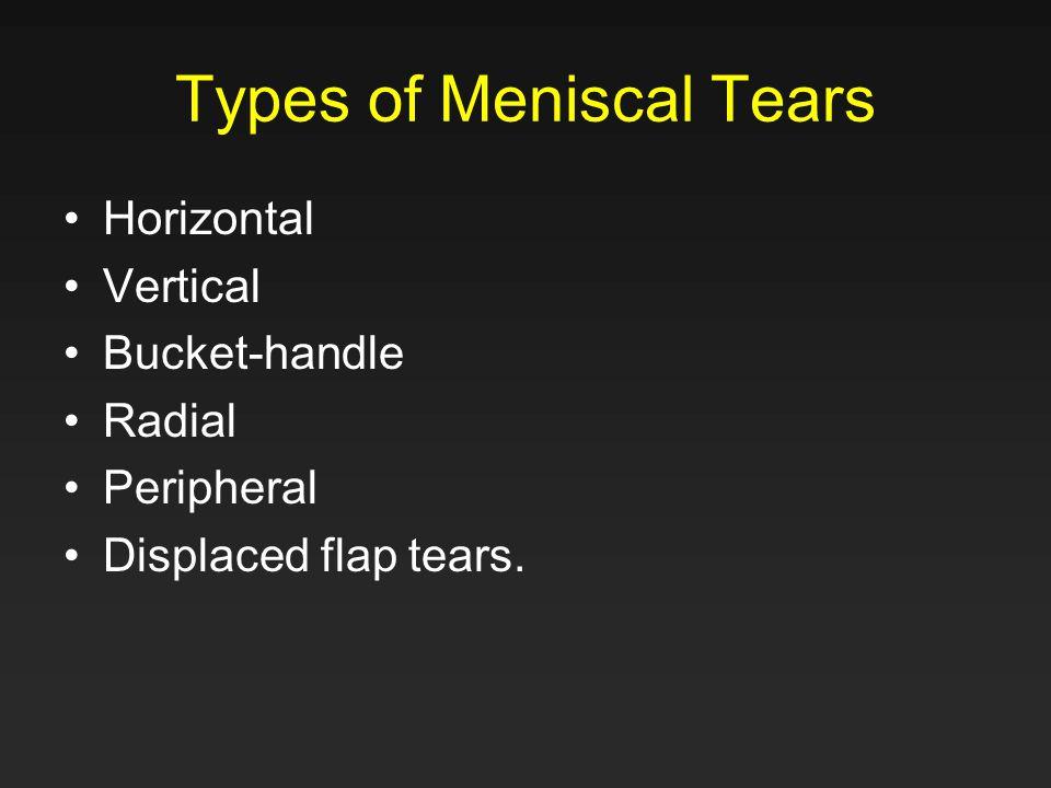 Types of Meniscal Tears Horizontal Vertical Bucket-handle Radial Peripheral Displaced flap tears.