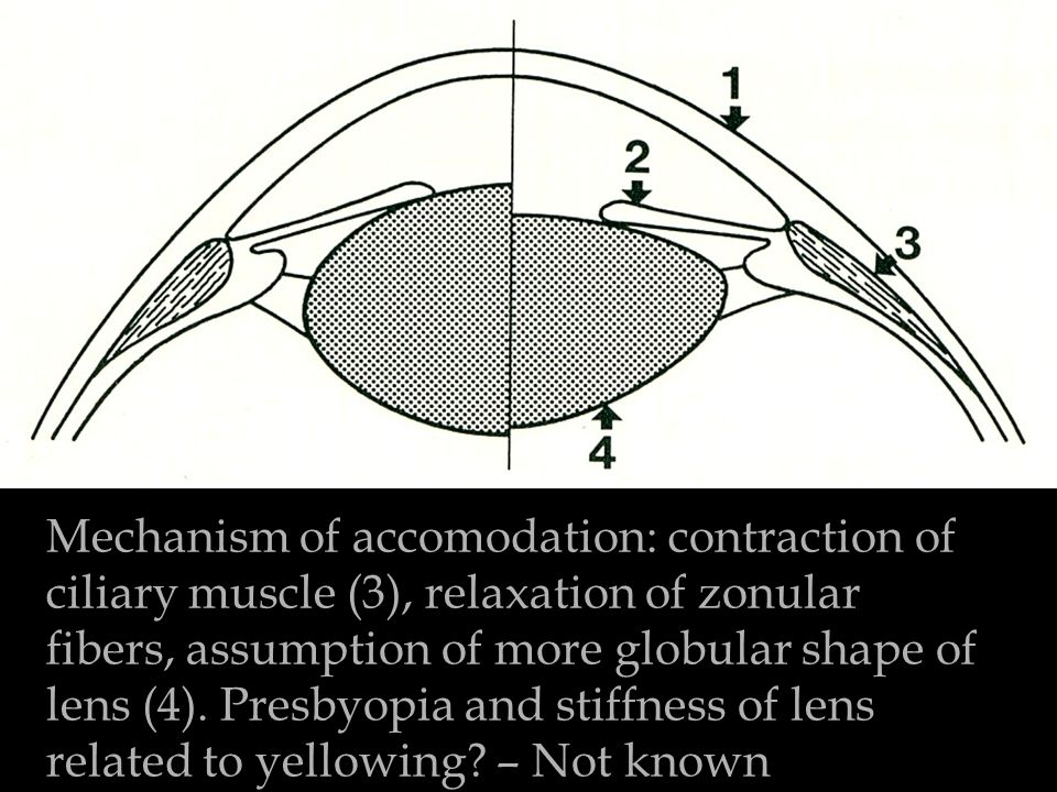 Mechanism of accomodation: contraction of ciliary muscle (3), relaxation of zonular fibers, assumption of more globular shape of lens (4).