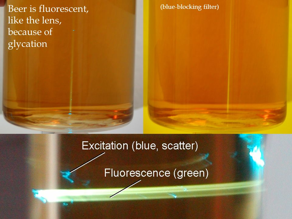 (blue-blocking filter) Beer is fluorescent, like the lens, because of glycation