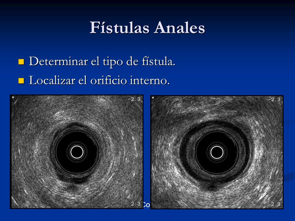 Fístulas Anales Determinar el tipo de fístula. Determinar el tipo de fístula. Localizar el orificio interno. Localizar el orificio interno. VII Congre