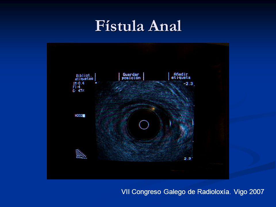 Fístula Anal VII Congreso Galego de Radioloxía. Vigo 2007