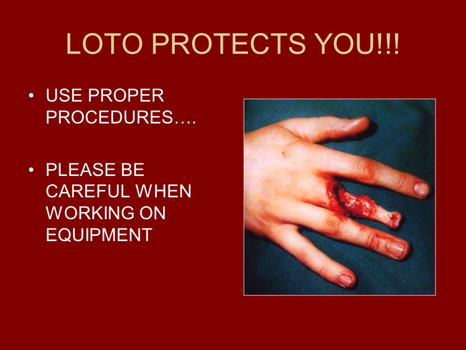 LOTO PROTECTS YOU!!! USE PROPER PROCEDURES…. PLEASE BE CAREFUL WHEN WORKING ON EQUIPMENT