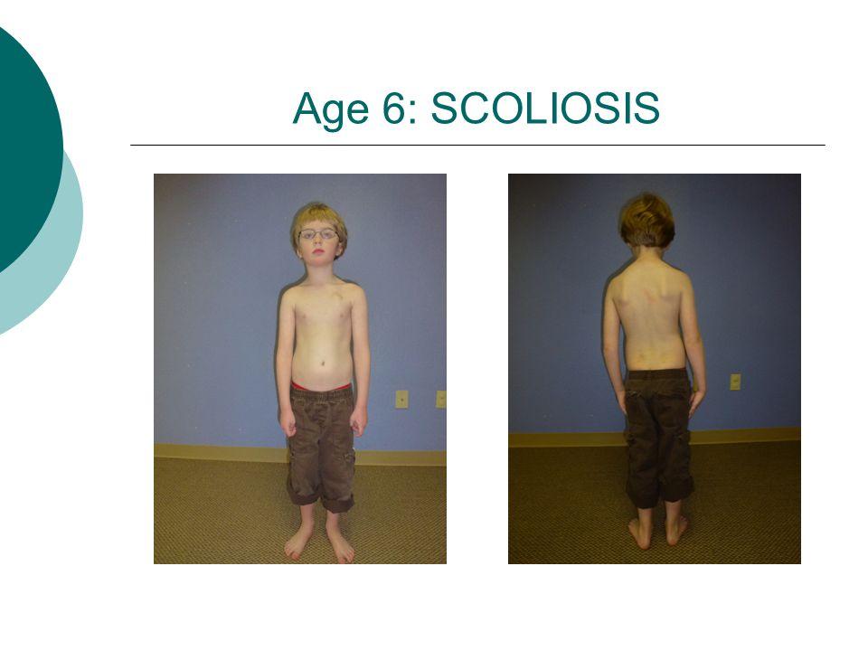 Age 6: SCOLIOSIS