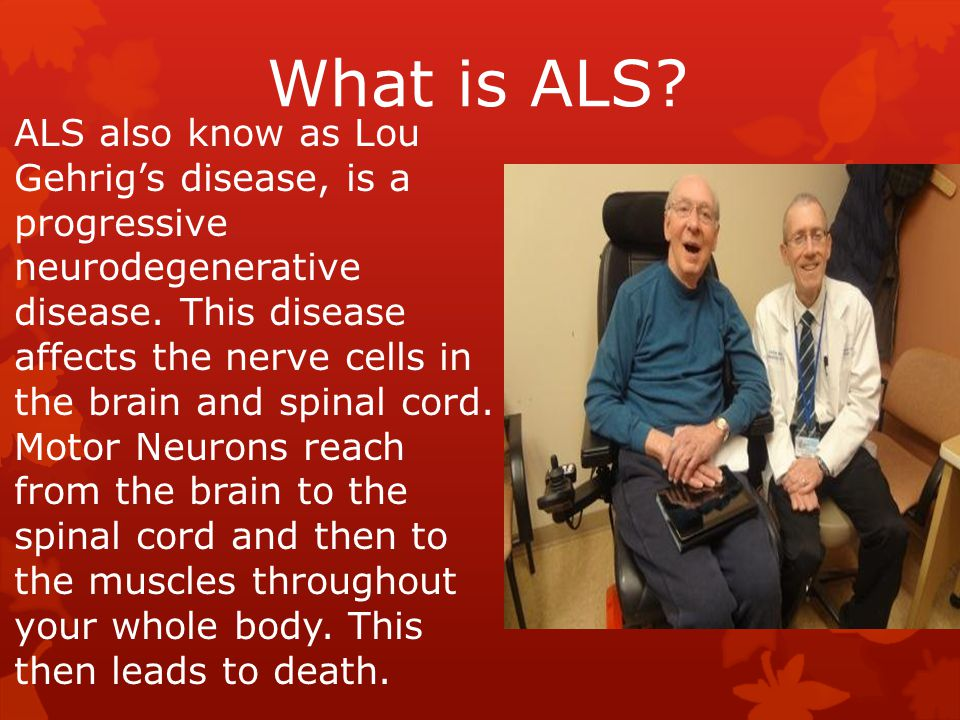 What is ALS? ALS also know as Lou Gehrig's disease, is a progressive neurodegenerative disease. This disease affects the nerve cells in the brain and