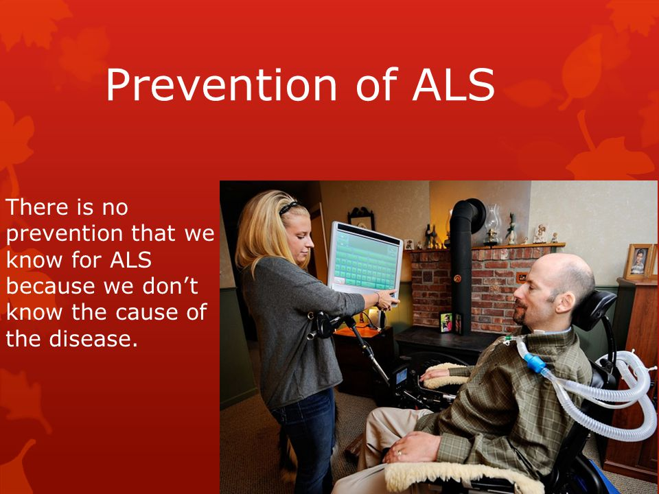 Prevention of ALS There is no prevention that we know for ALS because we don't know the cause of the disease.