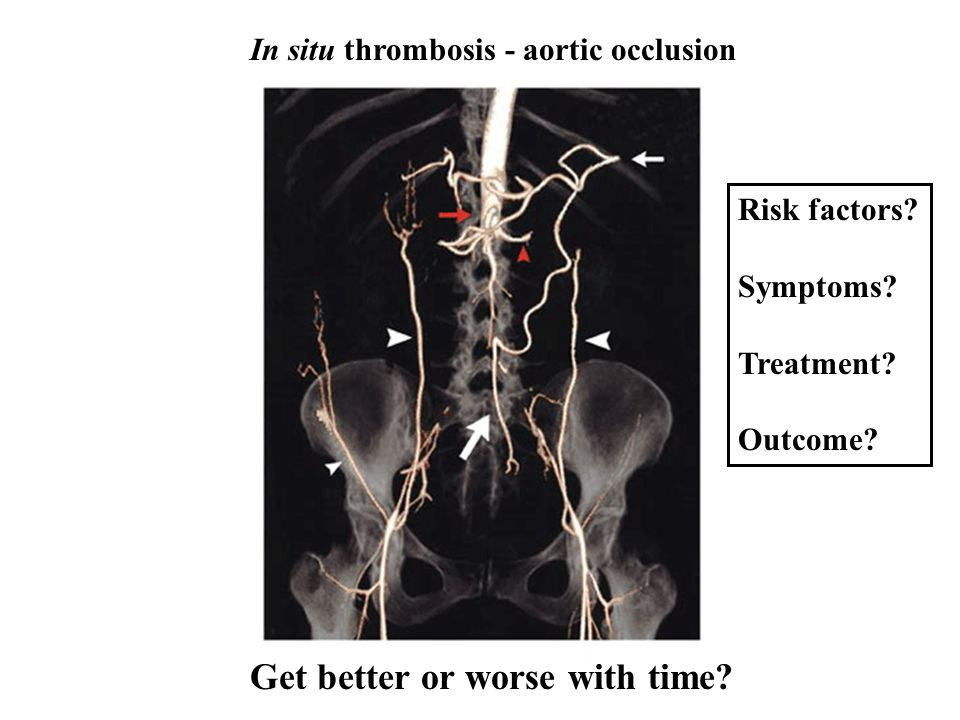 In situ thrombosis - aortic occlusion Get better or worse with time? Risk factors? Symptoms? Treatment? Outcome?