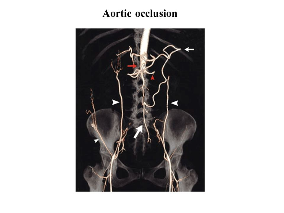 Aortic occlusion