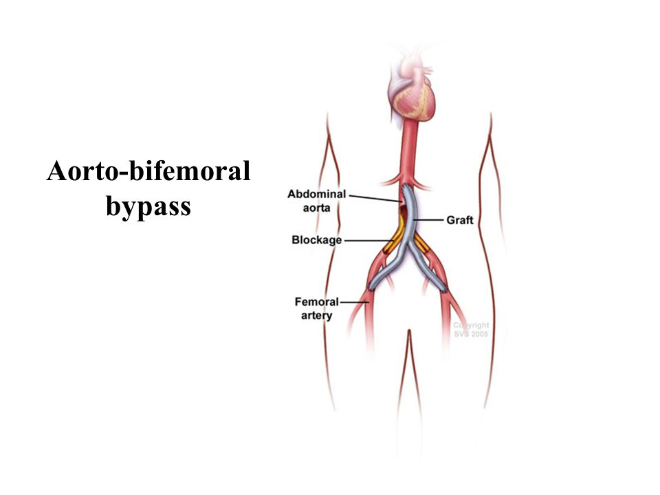 Aorto-bifemoral bypass