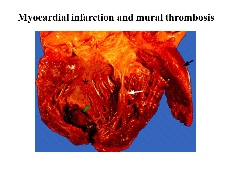 Myocardial infarction and mural thrombosis