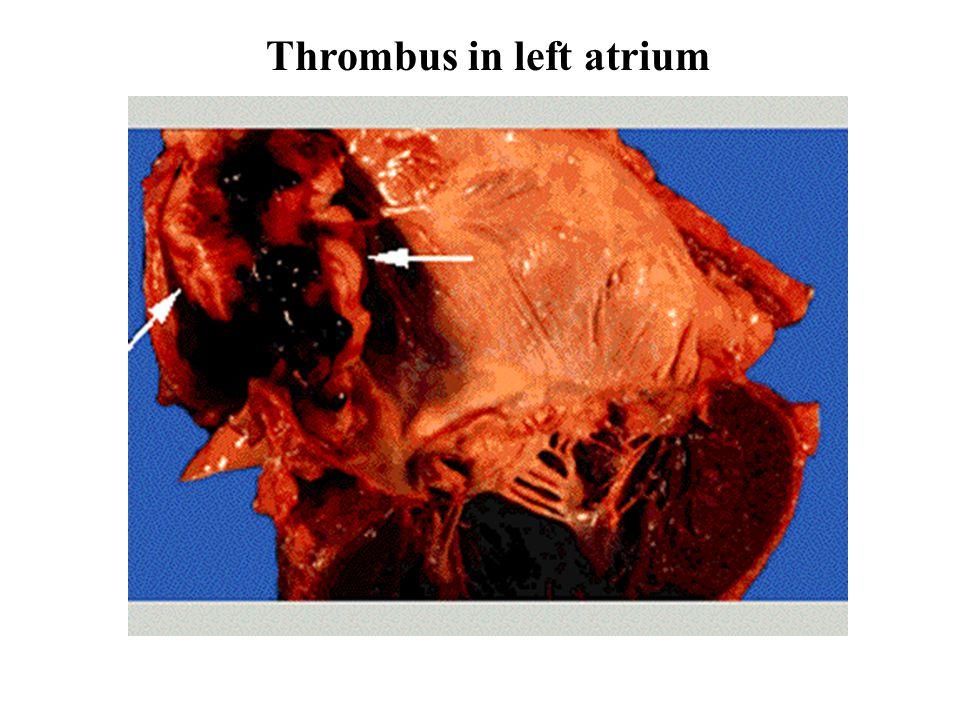 Thrombus in left atrium