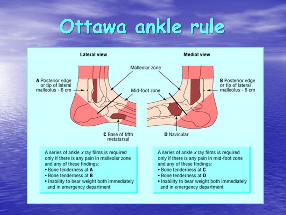 Ottawa ankle rule