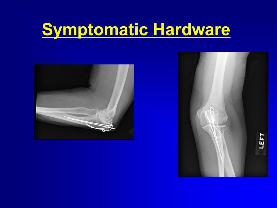 Symptomatic Hardware