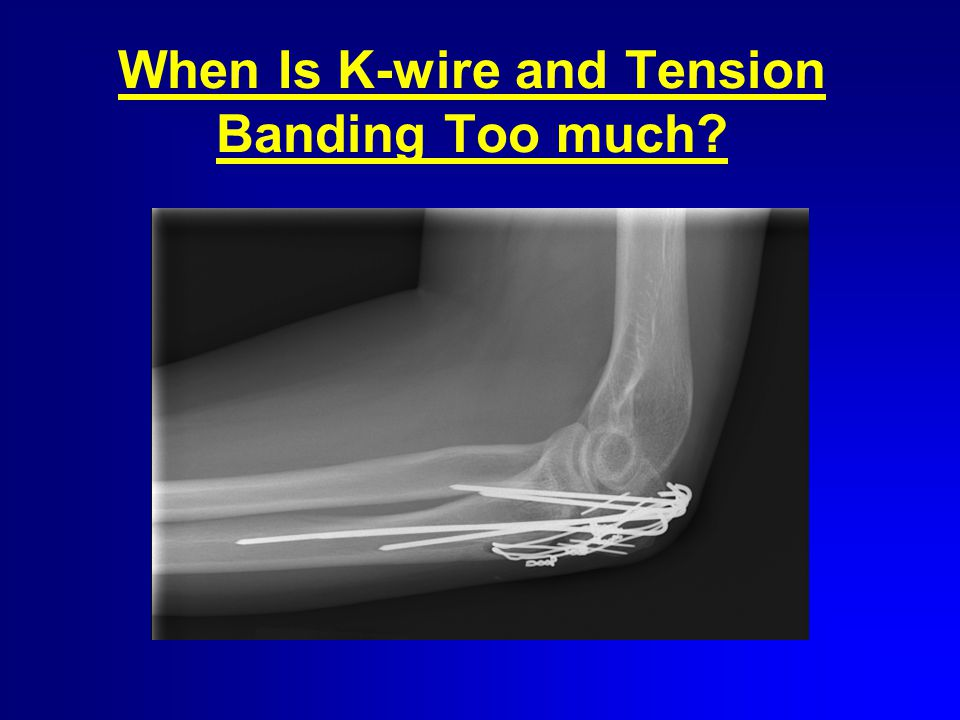 When Is K-wire and Tension Banding Too much