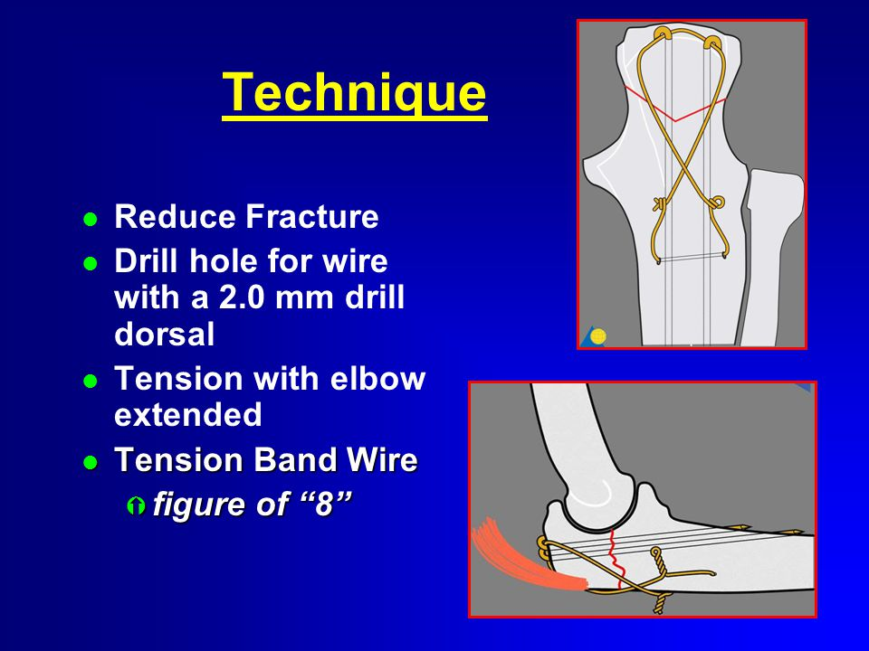 Technique l Reduce Fracture l Drill hole for wire with a 2.0 mm drill dorsal l Tension with elbow extended l Tension Band Wire Ý figure of 8