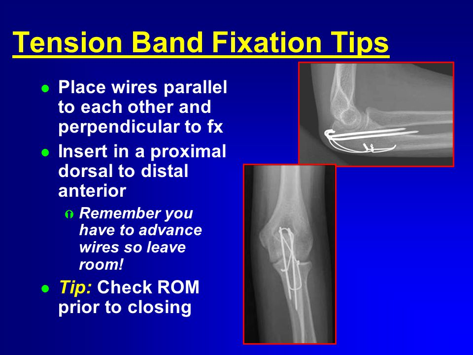 Tension Band Fixation Tips l Place wires parallel to each other and perpendicular to fx l Insert in a proximal dorsal to distal anterior Ý Remember you have to advance wires so leave room.