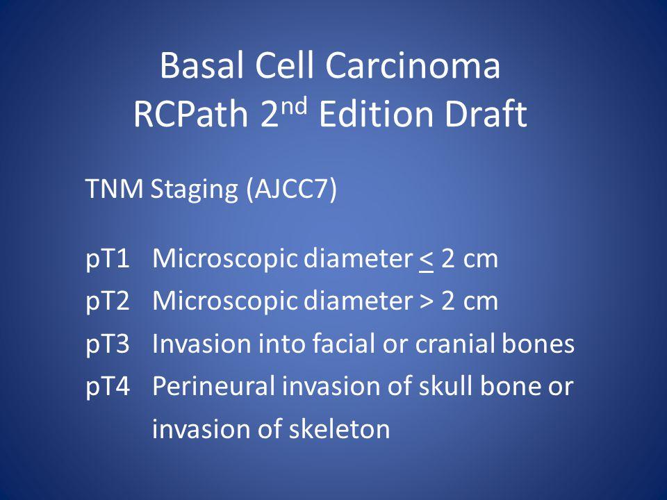Basal Cell Carcinoma RCPath 2 nd Edition Draft TNM Staging (AJCC7) pT1Microscopic diameter < 2 cm pT2Microscopic diameter > 2 cm pT3Invasion into facial or cranial bones pT4Perineural invasion of skull bone or invasion of skeleton
