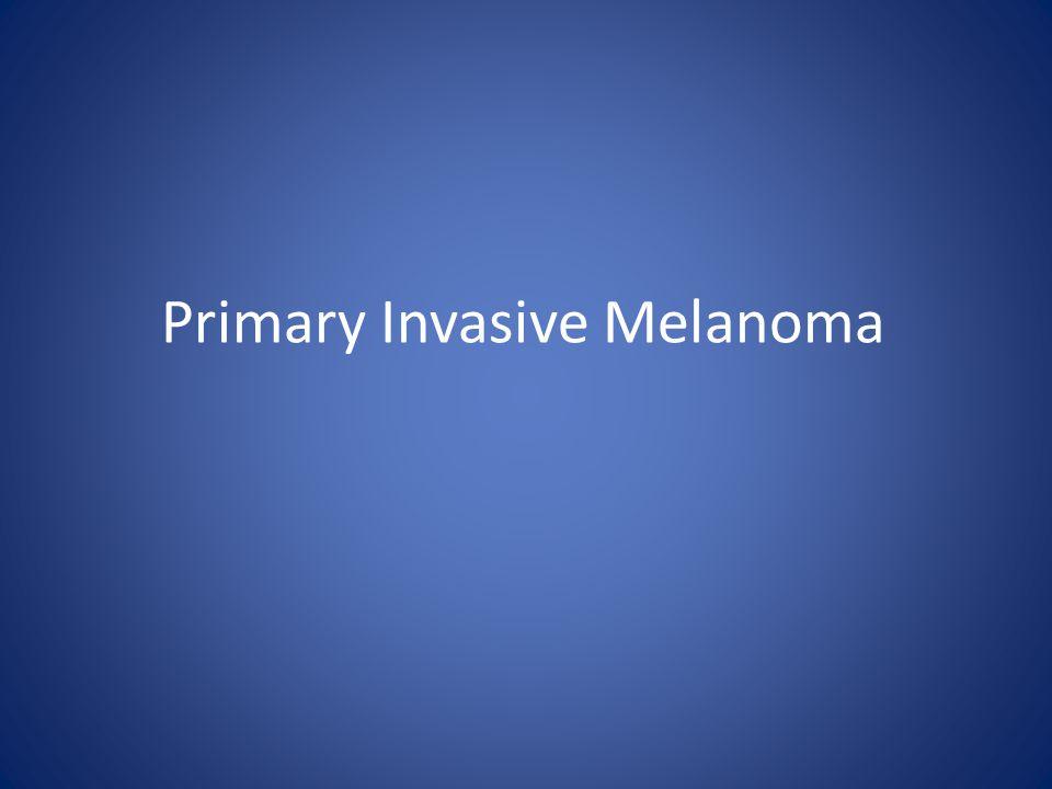 Primary Invasive Melanoma