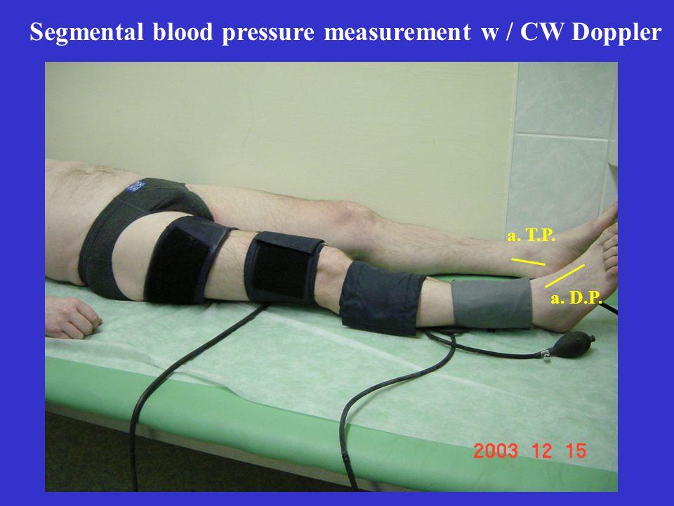 Segmental blood pressure measurement w / CW Doppler a. T.P. a. D.P.