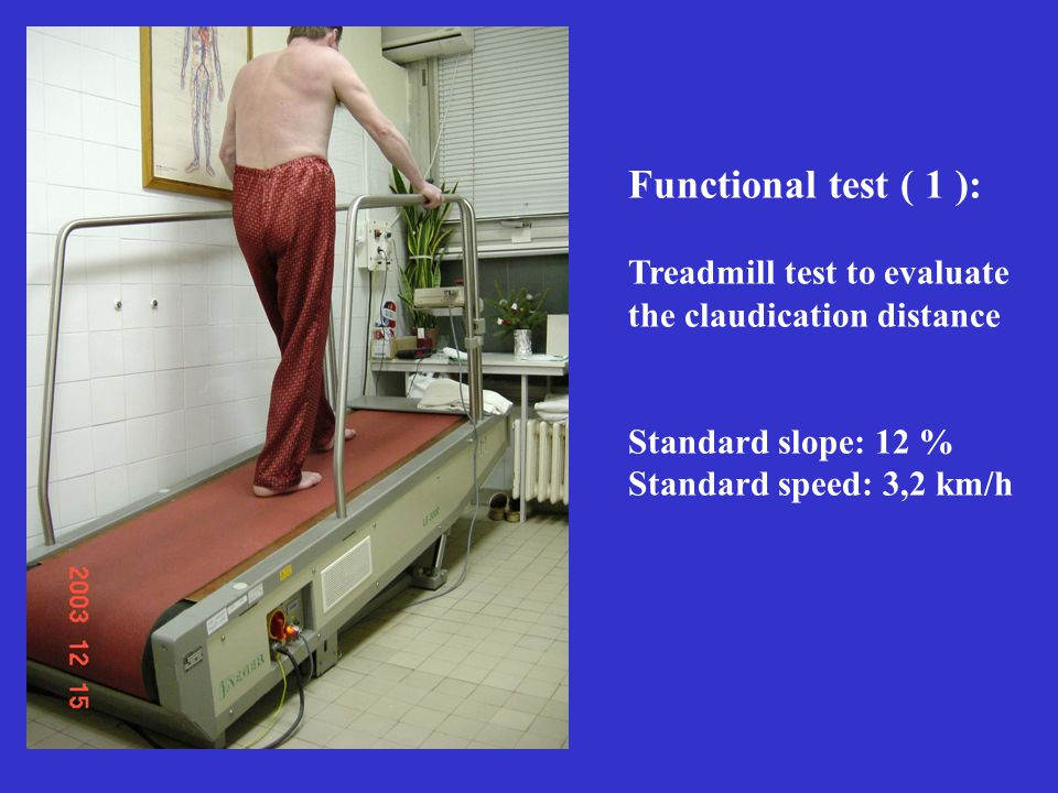 Functional test ( 1 ): Treadmill test to evaluate the claudication distance Standard slope: 12 % Standard speed: 3,2 km/h
