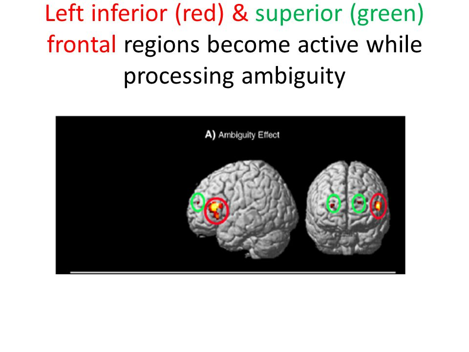Left inferior (red) & superior (green) frontal regions become active while processing ambiguity